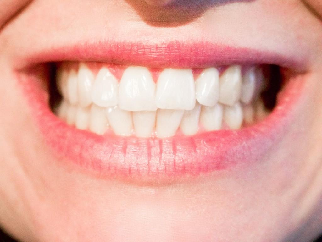 Implant dentaire Lyon : à quoi sert-il ?